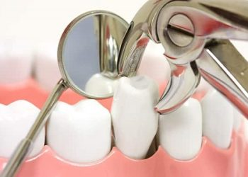 tooth-extractions